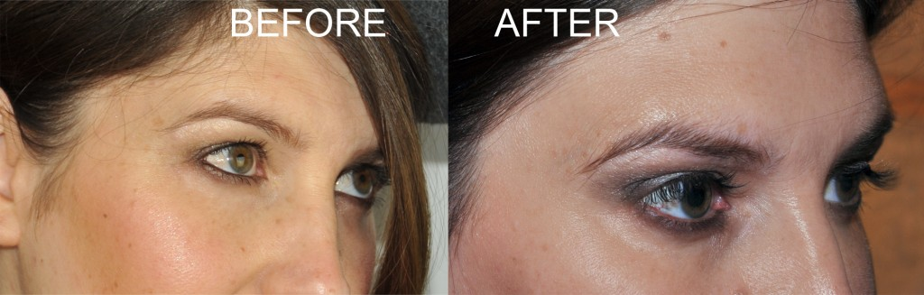 BEFOREAFTERlashes